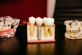 Atendimento-Clinico-Odontologico
