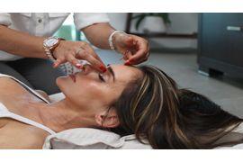 Micronutrientes-Aplicados-ao-Tratamento-da-Acne