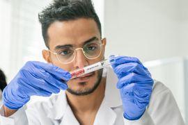 Lipidios--Metodos-de-Avaliacao-da-Composicao-Quimica